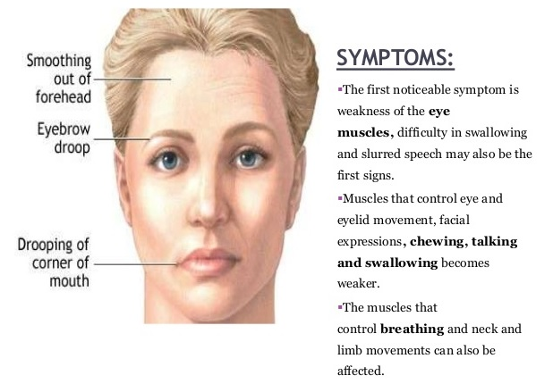 myasthenia gravis symptoms